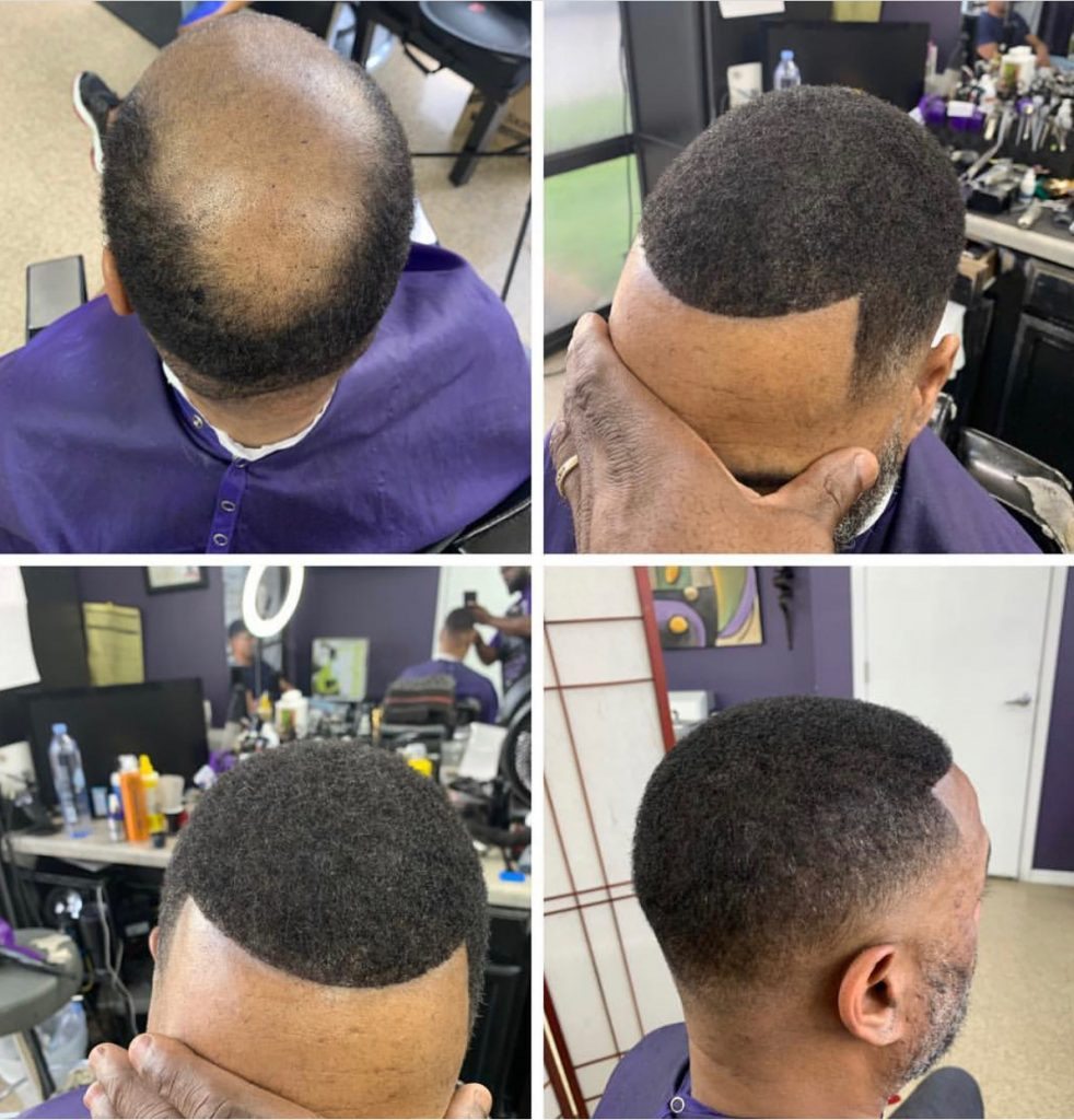 mens hair replacement